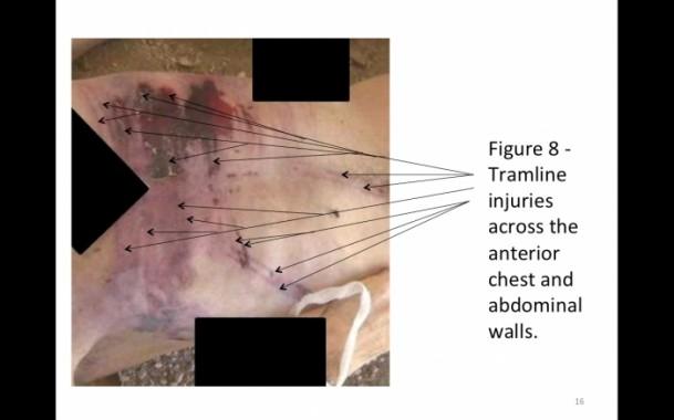 Suriye'de savaş suçu belgeleri 3