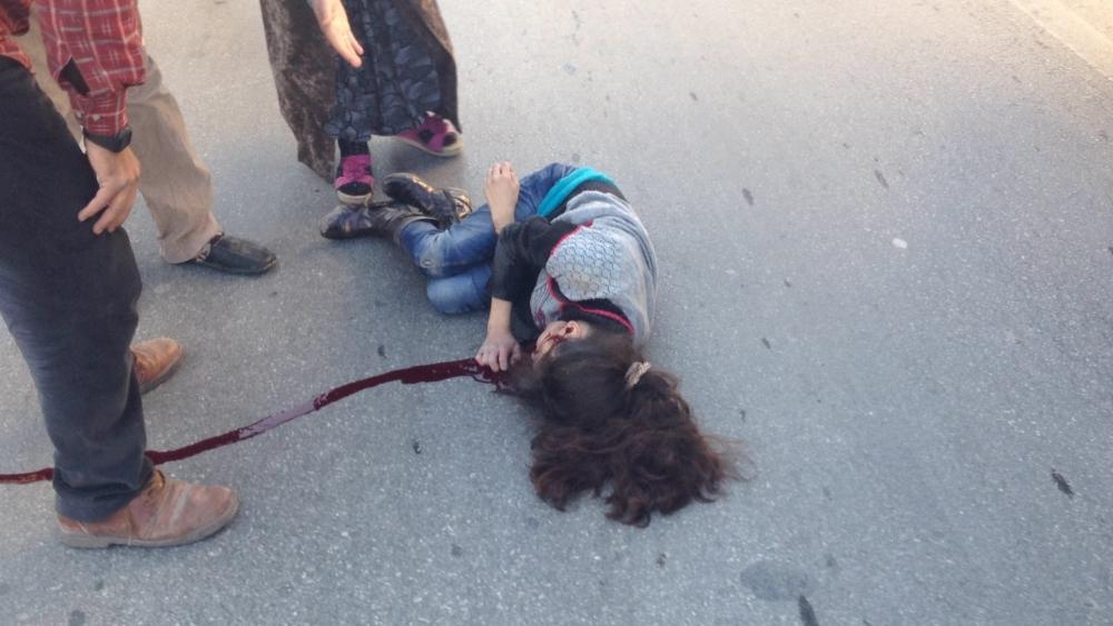 Konya'da otomobil kaldırımdaki çocuğa çarptı 1