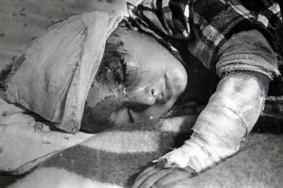 Ermenilerin Hocalı'da uyguladığı soykırımın 22. Yılı 18