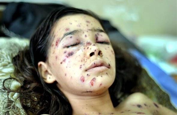 Google'da bir tane mutlu Gazzeli çocuk yok! 20