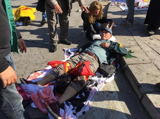 Ankara'da büyük patlama: Olay yerinden görüntüler 5