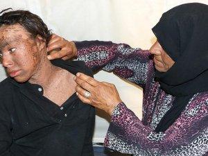 Suriyeli genç balık pulu hastalığıyla mücadele ediyor