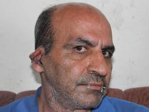 İranlı sığınmacı protesto için ağzını ve kulaklarını dikti