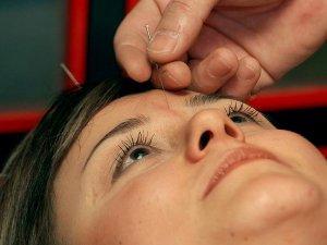 Depresyon ve bağımlılık tedavisine doğal destek: Akupunktur