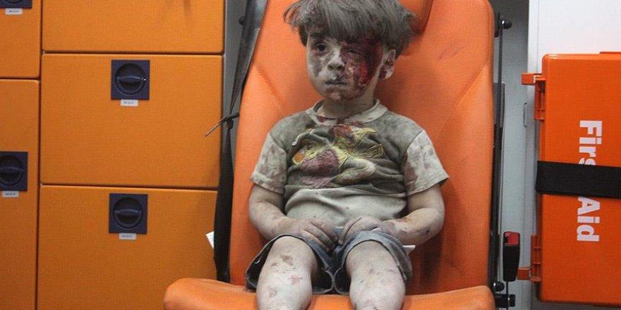 Halep'li 5 yaşındaki ''Ümran Daknes''in dramı herkesi etkiledi