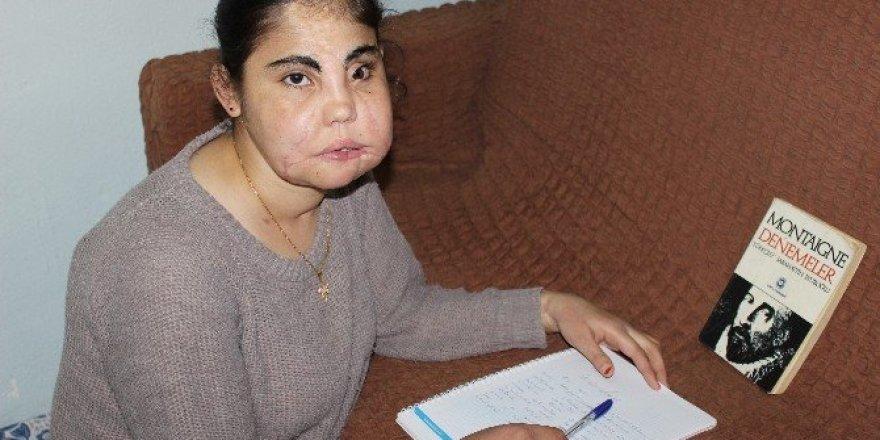 Türkiye'nin yüz nakli yapılan ilk kadını hayatını kaybetti
