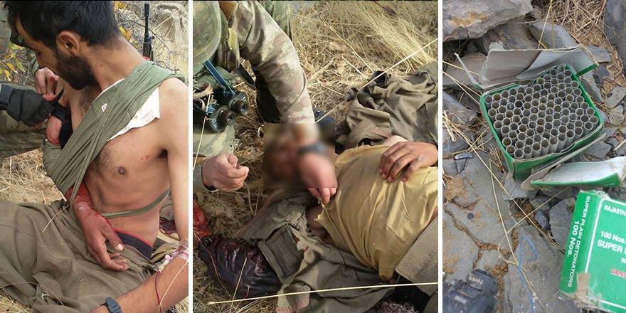 Yaralı teröriste Mehmetçikten insanlık dersi