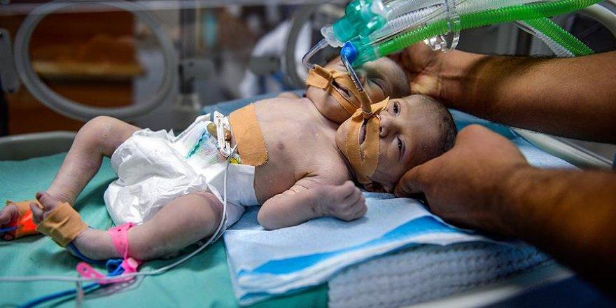 Gazze'de yapışık ikiz dünyaya geldi