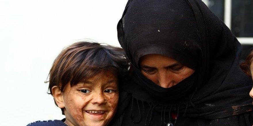 Minik Suriyeli savaşın izlerini yüzünde taşıyor