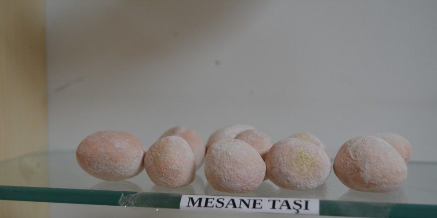 Hastalardan çıkarılan böbrek taşları sergileniyor ile ilgili görsel sonucu