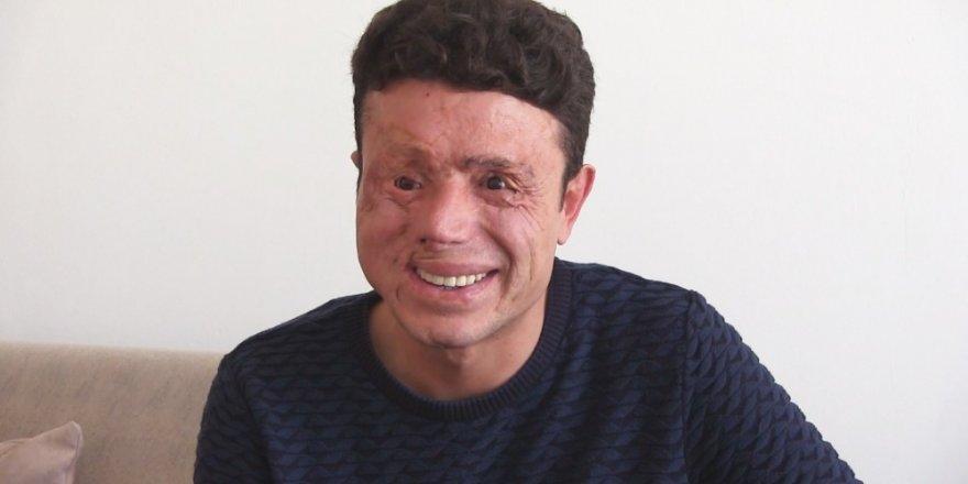 Gözlerini ve yüzünü kaybetti, gülüşünü kaybetmedi