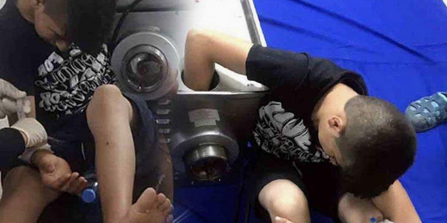 Kolunu kıyma makinesine kaptıran çocuk tedavi altına alındı