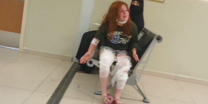 Üzerine çaydanlık devrilen Eda, yaralandı