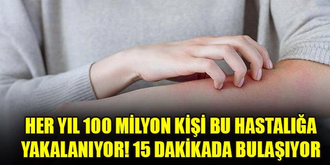 Her yıl 100 milyon kişi bu hastalığa yakalanıyor! 15 dakikada bulaşıyor, 6 haftada iyileşiyor