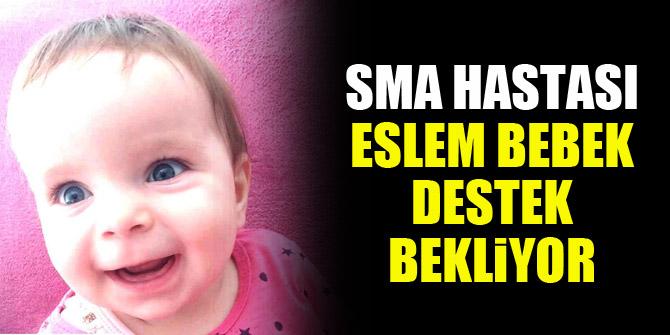 SMA hastası Eslem bebek destek bekliyor
