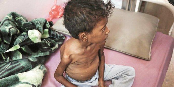 Yüz binlerce çocuk ölebilir