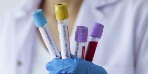 """Kovid-19 aşı bulunduktan sonra """"diğer viral hastalıklar gibi olacak"""""""