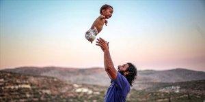 Doğuştan ayak ve kolları olmayan Muhammed bebek İdlib'de yaşam mücadelesi veriyor