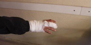 Karapınar'da sokak köpeğinin saldırdığı genç yaralandı