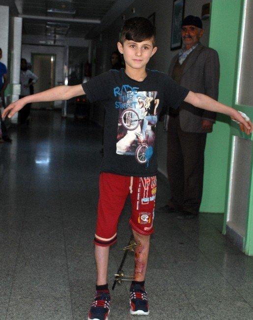 10 yaşındaki çocuğun bacağı kesilmekten kurtarıldı