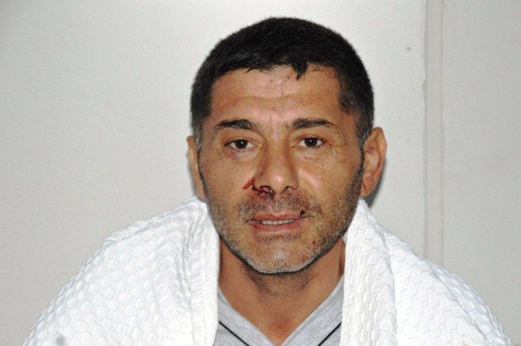 Mantar toplarken ayının saldırısına uğrayan vatandaş konuştu