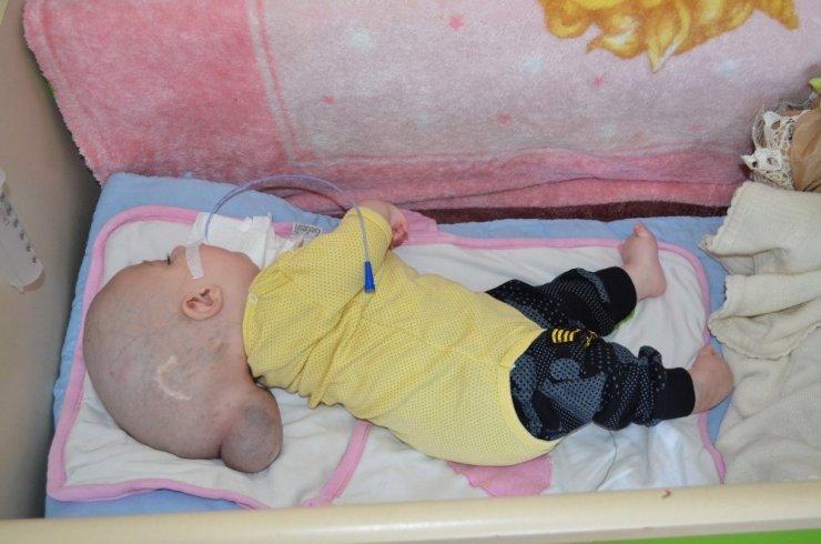12 aylık Yunus Emre'nin yürek burkan dramı