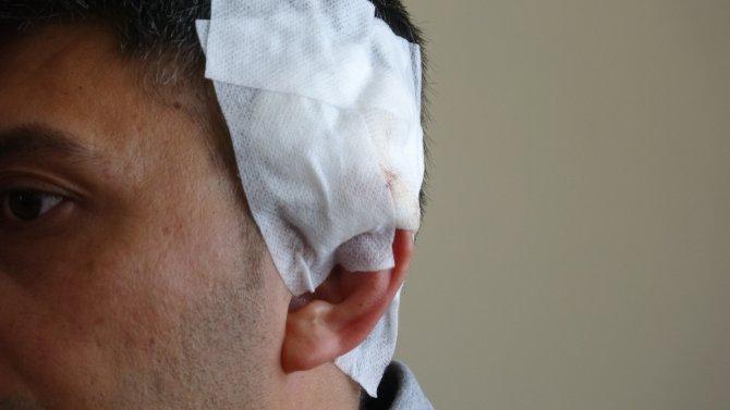 Kürekli saldırıda yaralanan komiser o anları anlattı