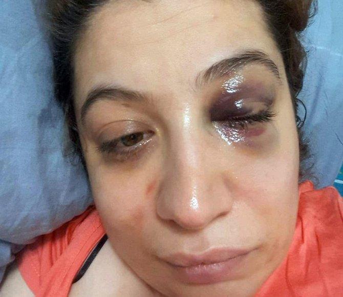 Eski eşi tarafından tehdit ve darp edilen kadın suç duyurusunda bulundu