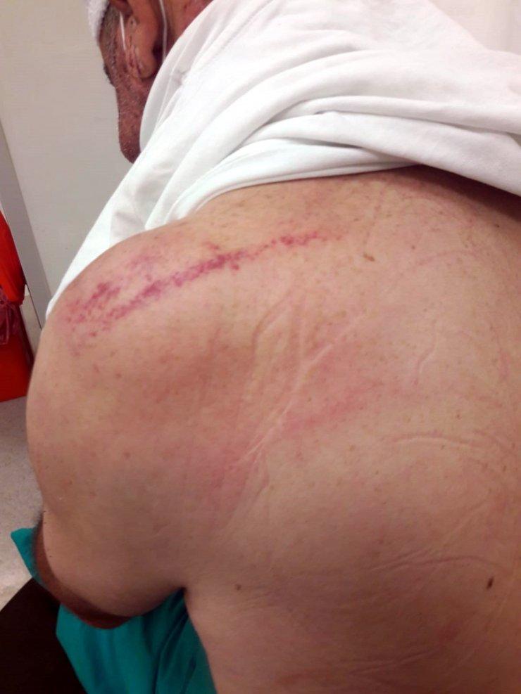 Otomobil gelinin üzerine alınmadığı için sopalarla dövülmüş