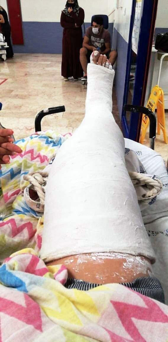 Mazgal kapağındaki kırık nedeniyle bacağı kırıldı