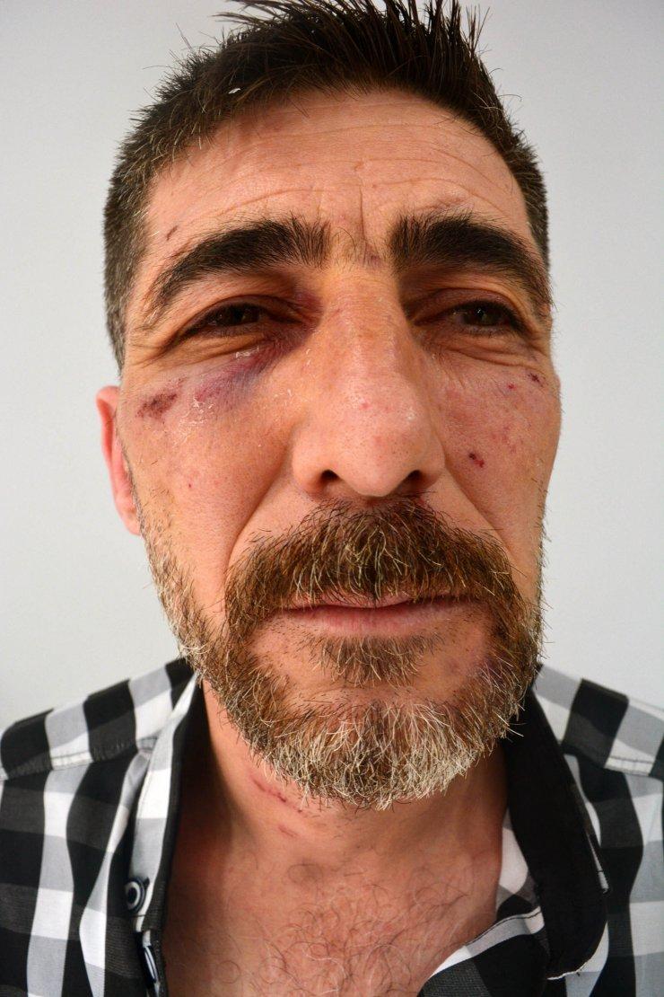 'Kavgayı ayırırken darbedildim' dedi, 3 bekçi hakkında idari soruşturma başlatıldı