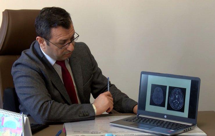 Koronavirüs hastalarında yüzde 30 oranında baş ağrısı tespit edildi