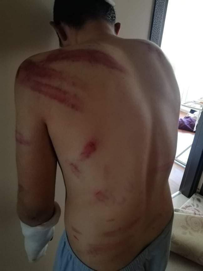 200 TL yüzünden 16 yaşındaki gence 5 saat süren işkence