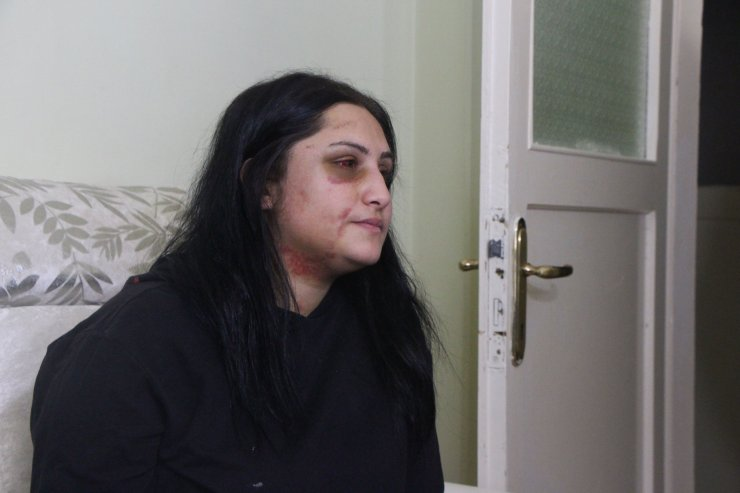 Boşandığı eşini sokak ortasında döven Zarap'ın 18 yıl hapsi isteniyor