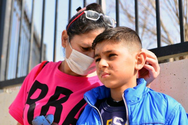 Arkadaşının döktüğü temizlik malzemesi Yiğit Ali'nin yüzünü yaktı