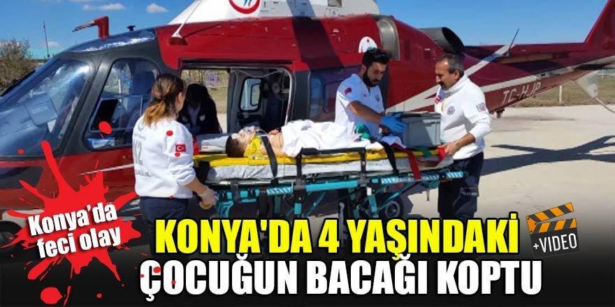 Konya'da 4 yaşındaki çocuğun bacağı koptu